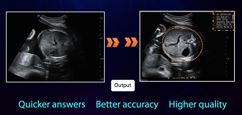 S Fetus