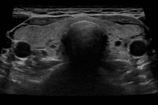 Trapezioid Imaging